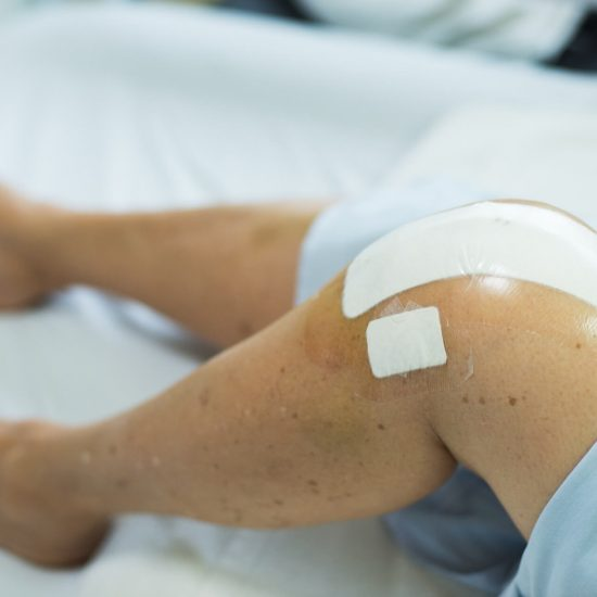 Close up of knee replacement surgery after operation. Patient on the bed in hospital gown.
